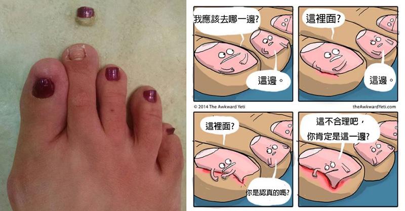 17個會讓人覺得超噁爛的「腳指甲知識」 人類的腳指甲其實是爪子