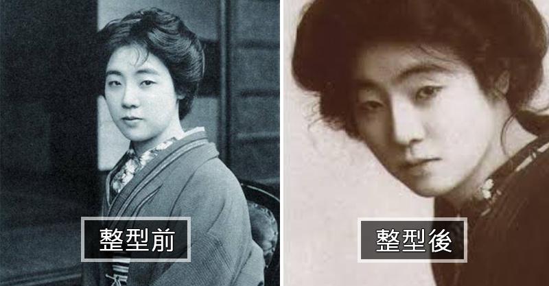 日本第一位整形妹!鼻子打進「熱蠟」想讓鼻樑變高 最後鼻腔卻塞滿綠色濃稠物...