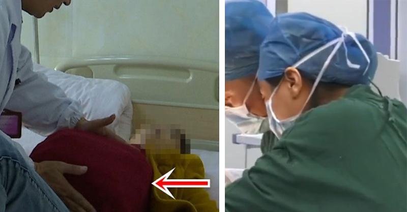 5旬婦曾做絕育手術但「肚子越來越大」 醫生幫她「生下」6公斤重巨物驚:過去從未見過