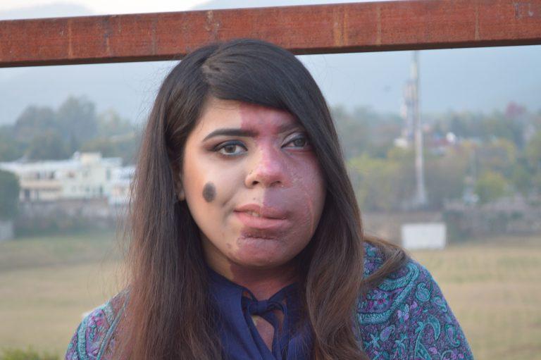 她半邊臉都被胎記占據 學校逼「帶面紗上課」天氣變化還會預知變色...最後卻成超美身體圖畫!