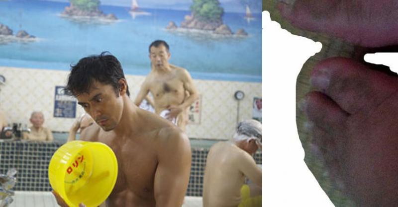 肥宅7年沒洗澡...公開超噁「已壞光身體照」網友全嚇壞 他:每天只做一件事